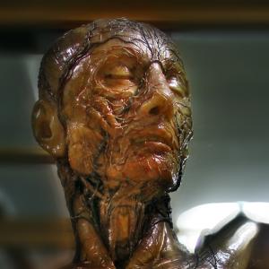 museoanatomiatorsopp-585x585